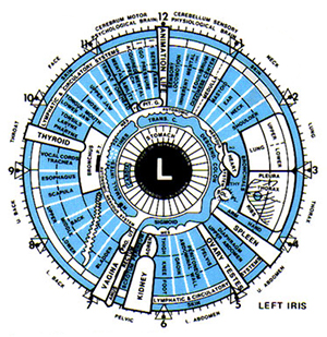 Detox w/ detailed Iridology Assessment